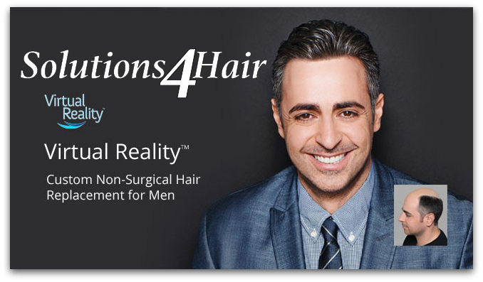 1-virtual-hair-replacement-systems-men-chicago.jpg